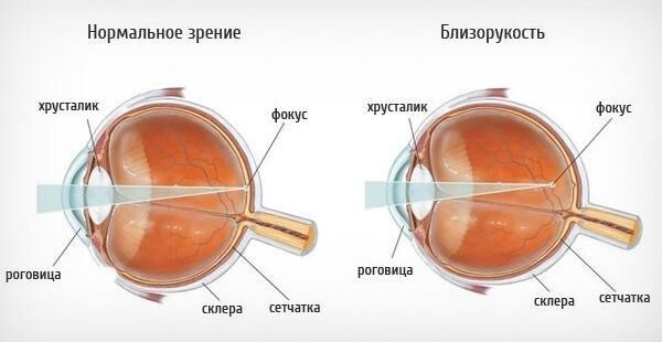 Глаз при близорукости