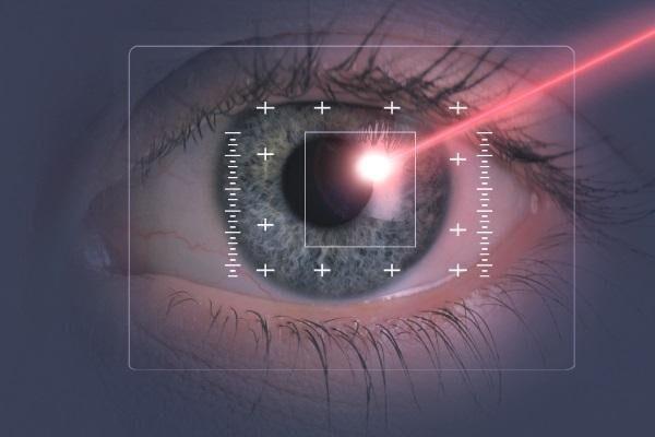 Лазерная коррекция близорукости