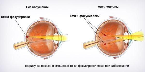 Два фокуса в глазу