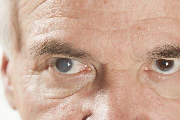 Признак глаукомы