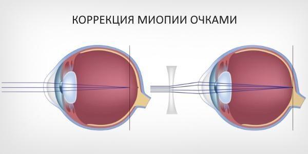 Коррекция очками