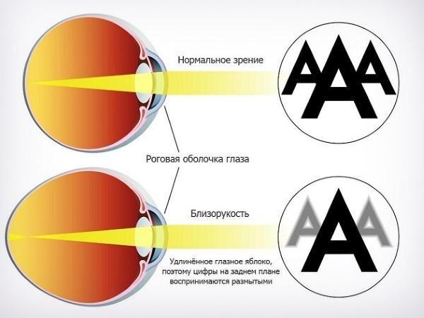 Минусовое зрение