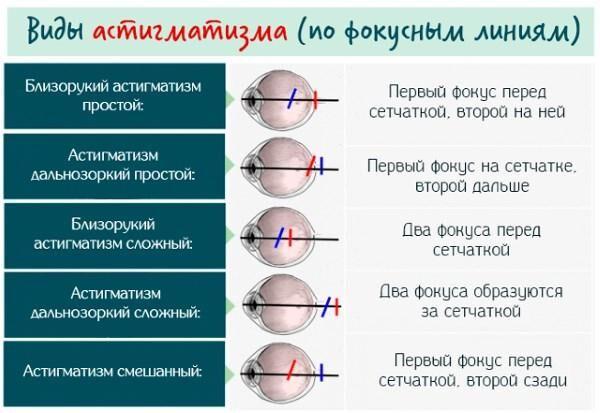 Типы астигматизма