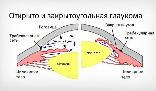 Открытоугольная и закрытоугольная форма