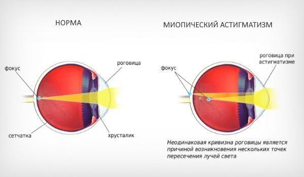 Фокус перед и на сетчатке