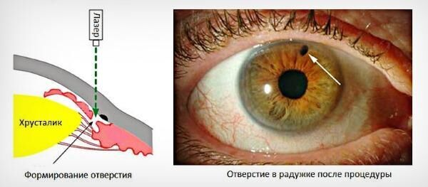 Иридэктомия