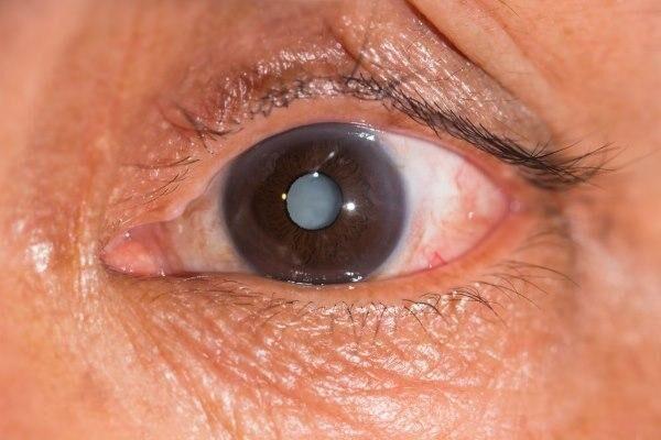 Помутневшая линза глаза