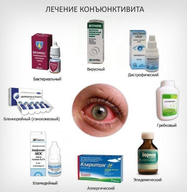 Лечение конъюнктивы