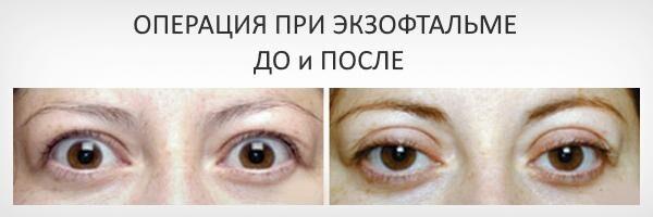 Операция до и после