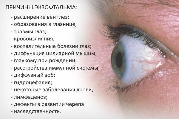 Причины экзофтальма