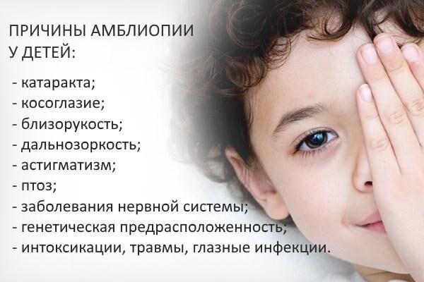 Причины детской амблиопии
