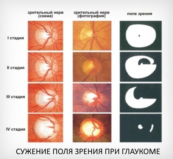 Сужение поля зрения