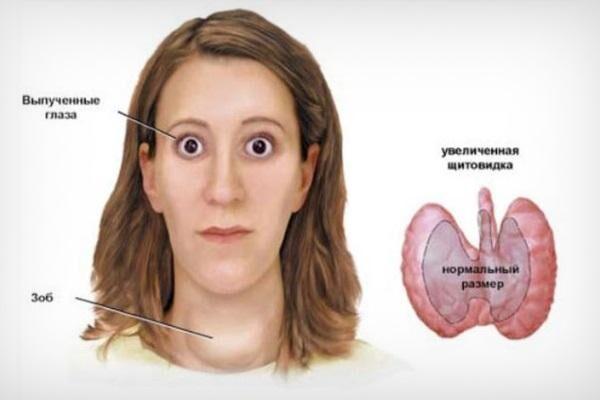 Тиреотоксический экзофтальм