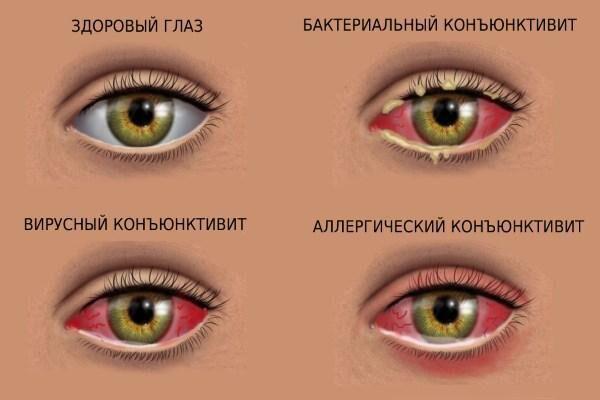 Виды канъюнктивита