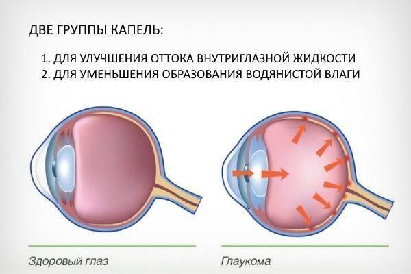 Виды глазных капель