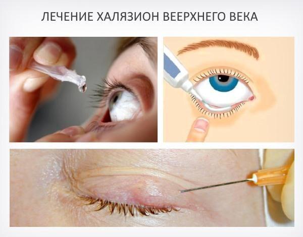 Лечение халязиона верхнего века