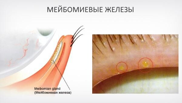 Мейбомиевые железы