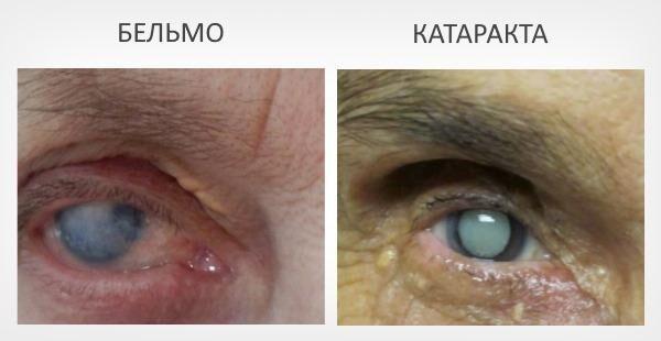 Лейкома и катаракта