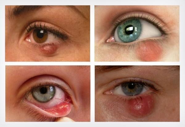 Симптоматика халязиона