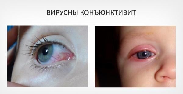 Вирусная форма