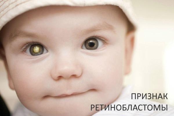 Признак ретинобластомы