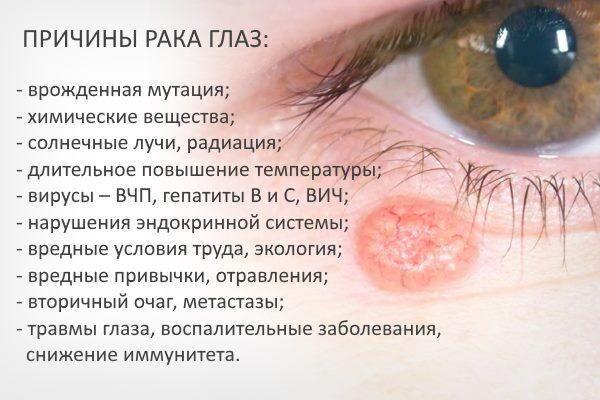 Причины онкологии глаз