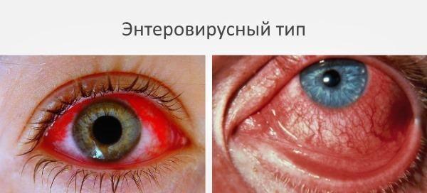 Энтеровирусный тип