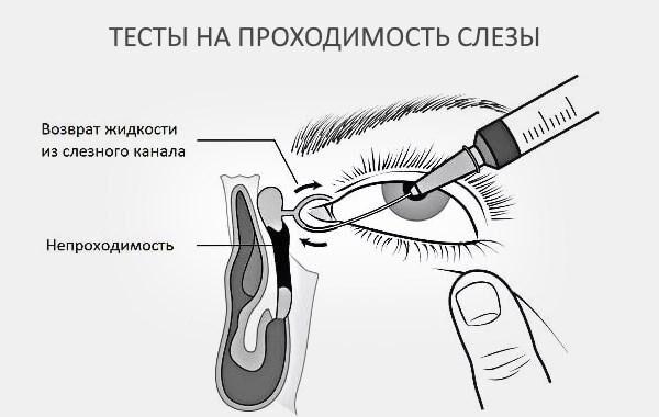Тесты на проходимость слезы