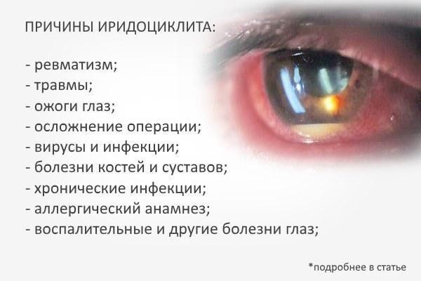 Причины возникновения иридоциклита глаз