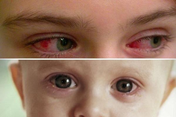 Вирусный конъюнктивит у ребенка