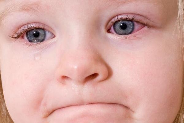 Вирусный конъюнктивит глаз у ребенка