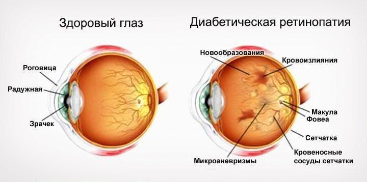 Диабетическая ретинопатия схематично