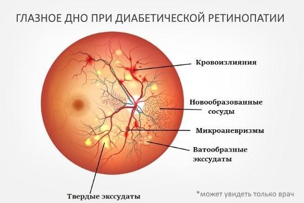 Глазное дно при ретинопатии