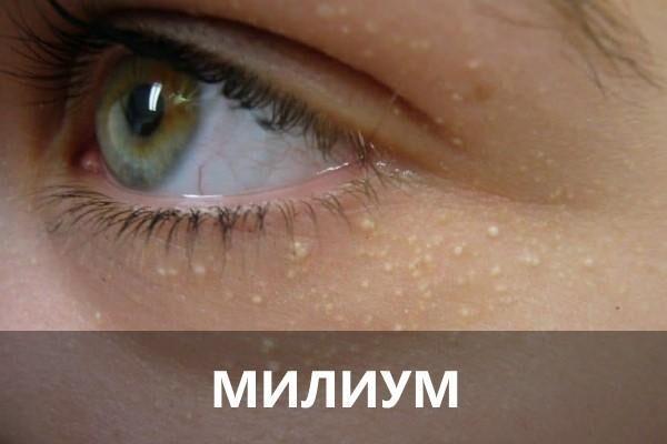 Милиум