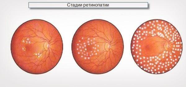 Фазы ретинопатии при сахарном диабете