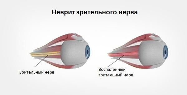 Неврит зрительного нерва