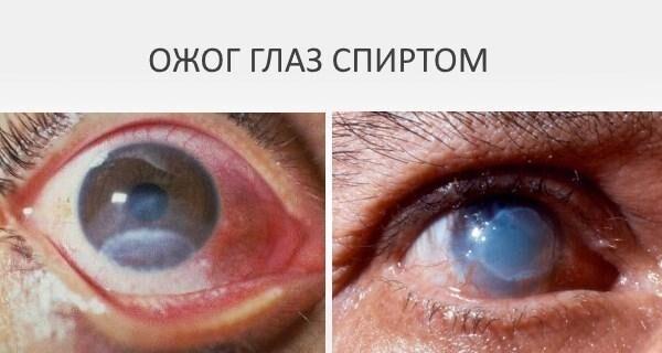 Ожог глаз спиртом