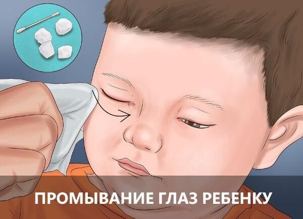 Промывание глаз ребенку