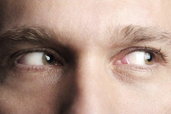 Больно вращать глаза