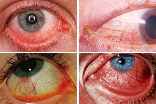 Симптомы ангулярного конъюнктивита