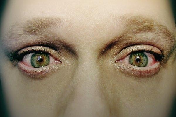 Жжение глаз