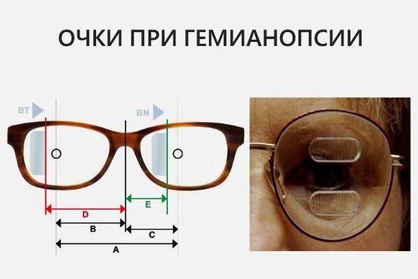 Очки при гемианопсии