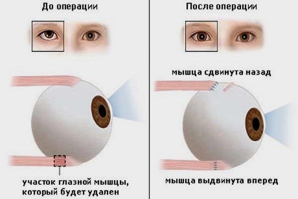 Операция по коррекции мышц глаза