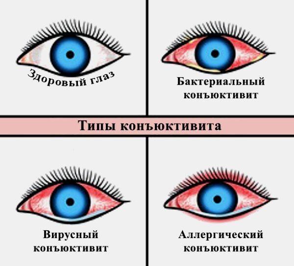 Типы конъюнктивита
