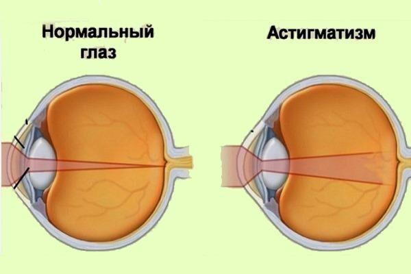 Норма и патология зрения