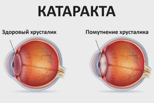 Катаркта