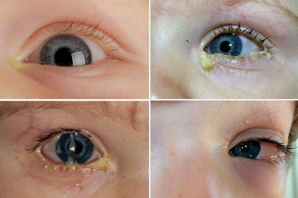 Выделения из глаз у ребенка