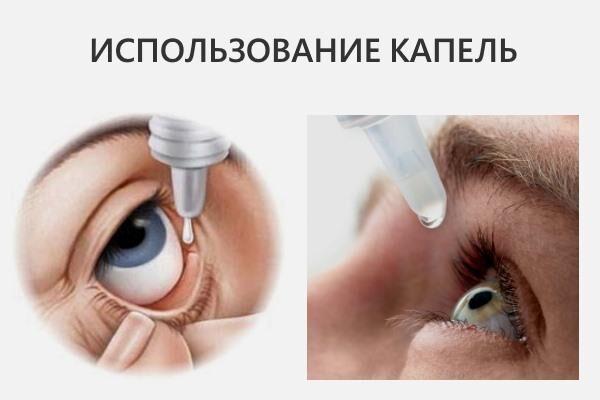 Использование капель для глаз