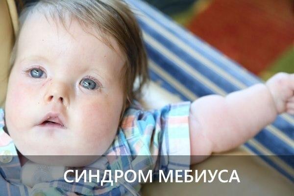 Синдром Мебиуса