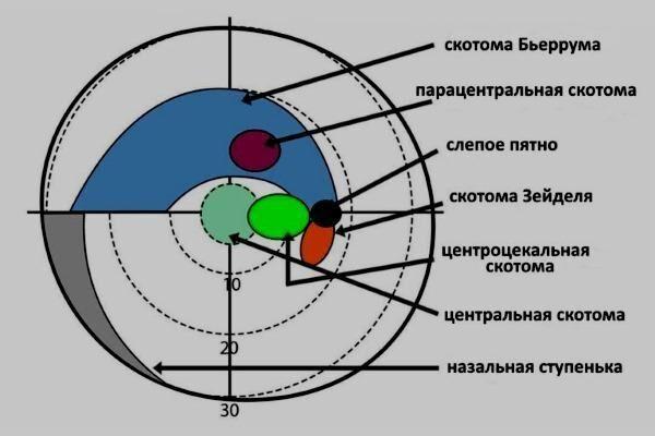 Разновидности выпадения полей зрения